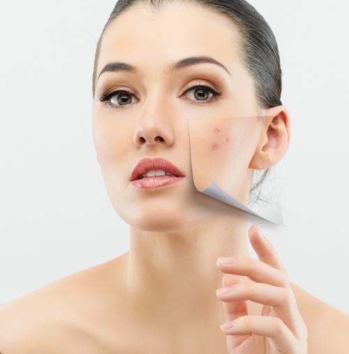 huisarts acne behandeling